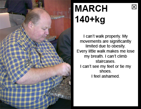 MARCH 140kg I can't walk properly. My movements are significantly limited due to obesity. Every little walk makes me lose my breath. I can't climb staircases. I can't see my feet or tie my shoes. I feel ashamed.